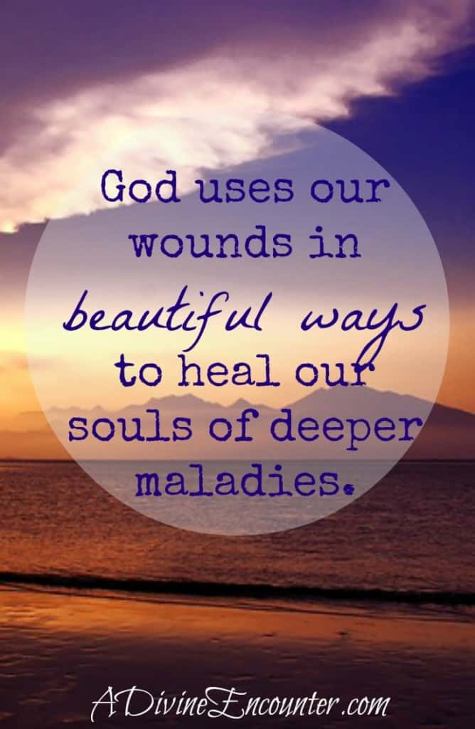 A personal look into deeper healing God brings from our wounds. (Isa. 53:5) http://adivineencounter.com/healing-in-the-wounds